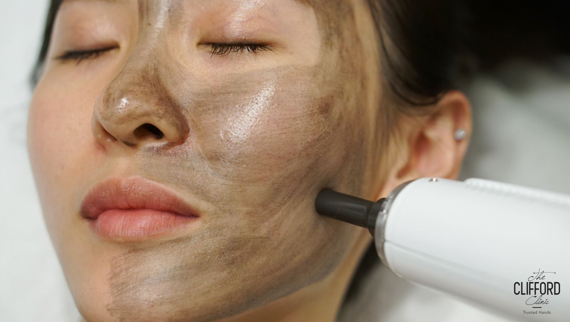Battle Pimples And Find Options For The Pores and skin!